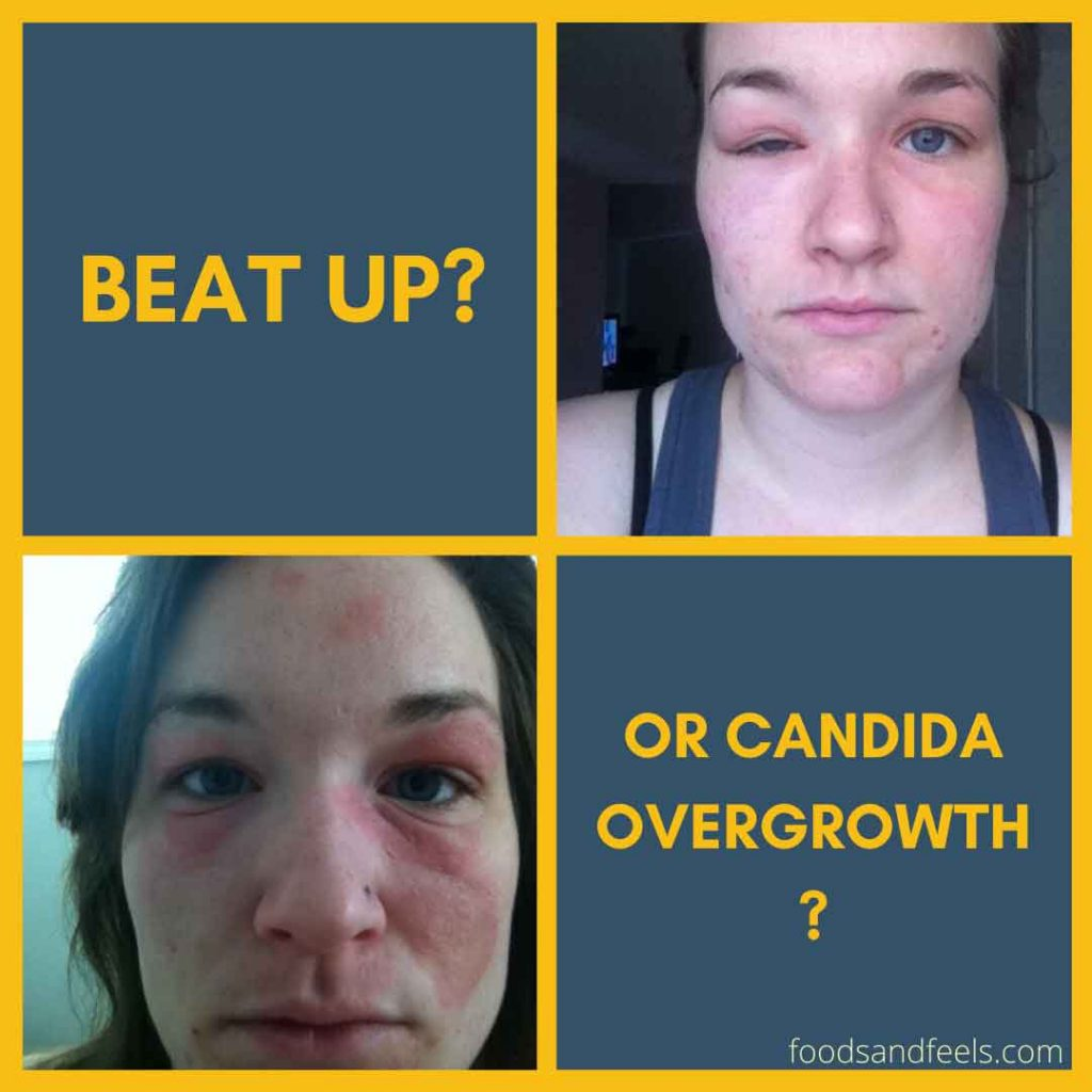Pictures of me with swollen eyes, swollen face and eczema from candida overgrowth