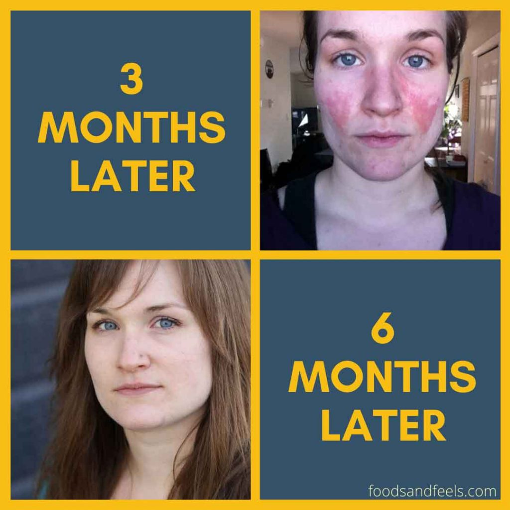 Pictures of me after candida cleanse and eczema clearing up